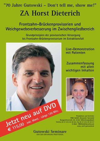 Frontzahn-Brückenprovisorien + Weichgewebeverbesserung im Zwischengliedbereich