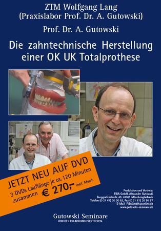 Die zahntechnische Herstellung einer OK UK Totalprothese